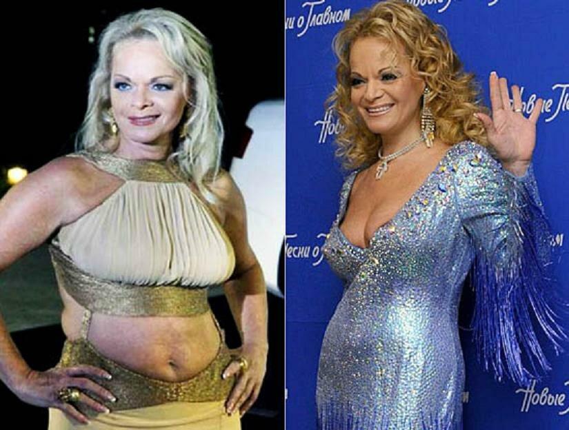 Как похудела Лариса Долина: фото до и после